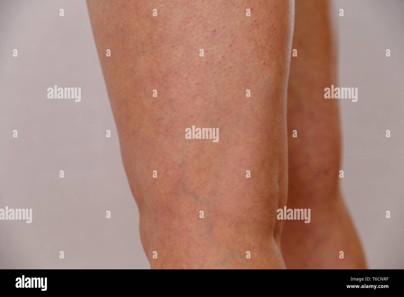 varicose veins of young woman - Stock Image