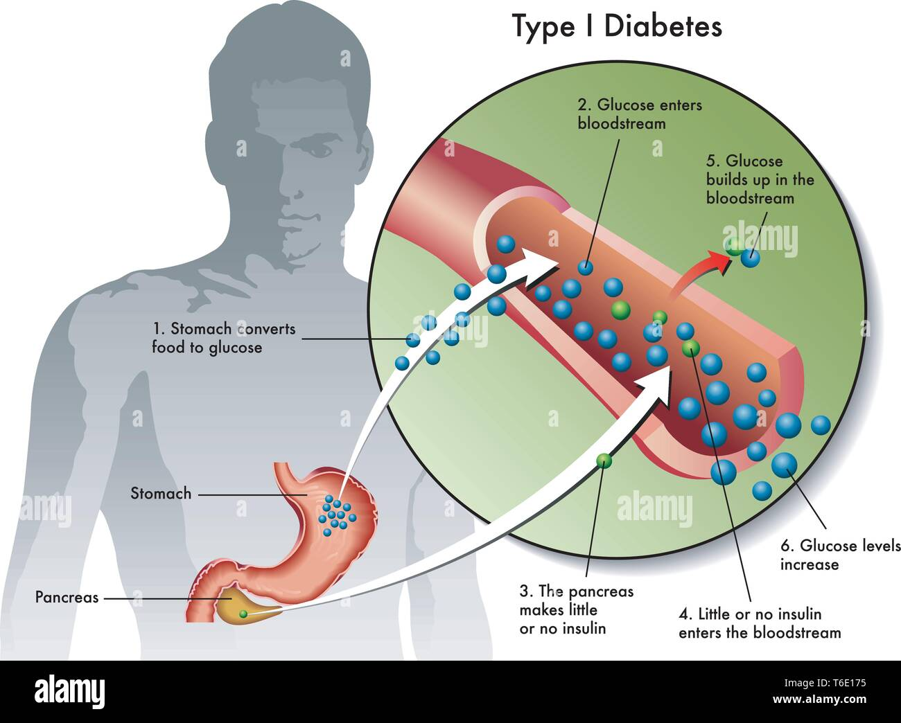 Medical illustration of the symptoms of type 1 diabetes - Stock Image