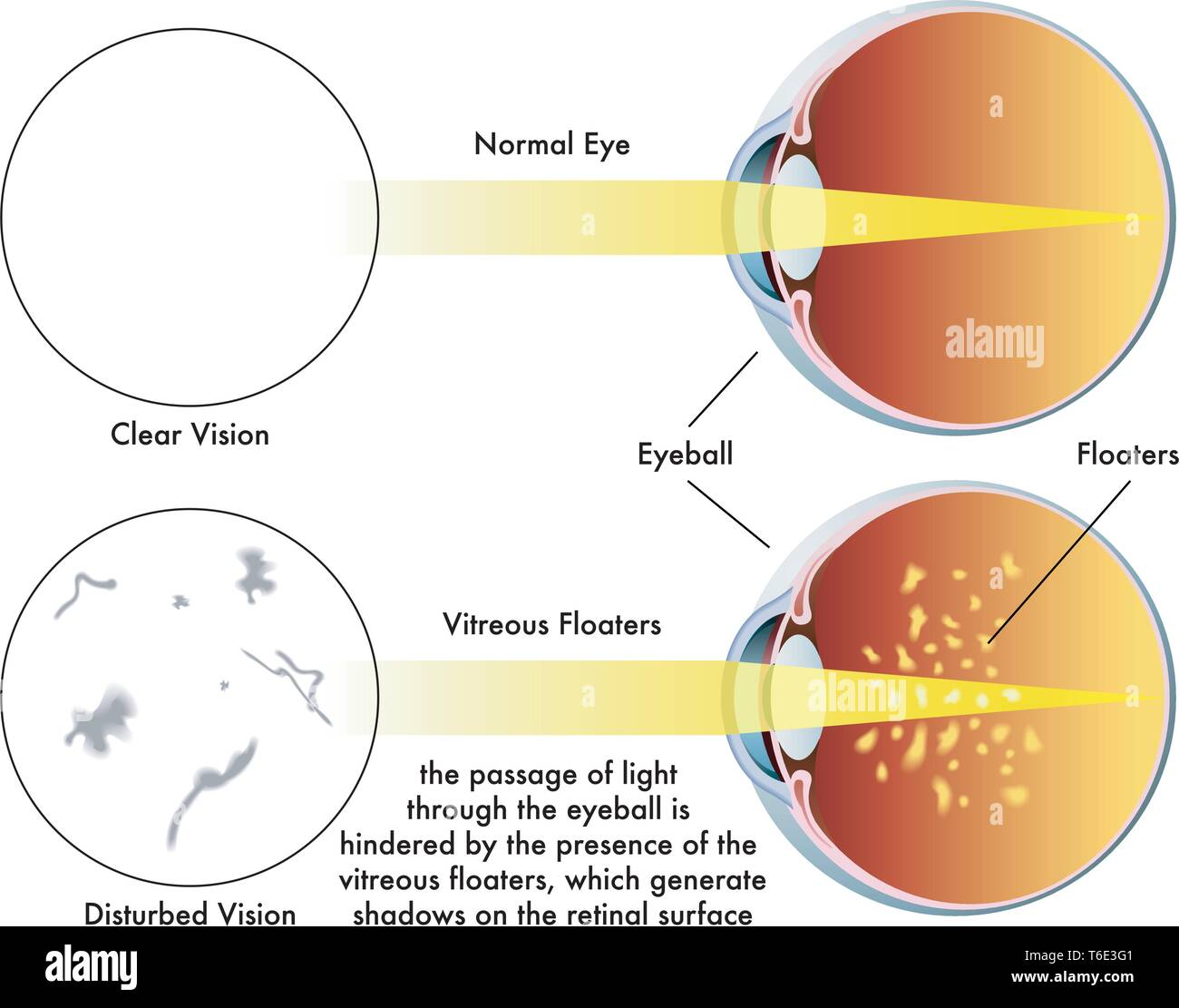 Medical illustration of the symptoms caused by vitreous floaters - Stock Image