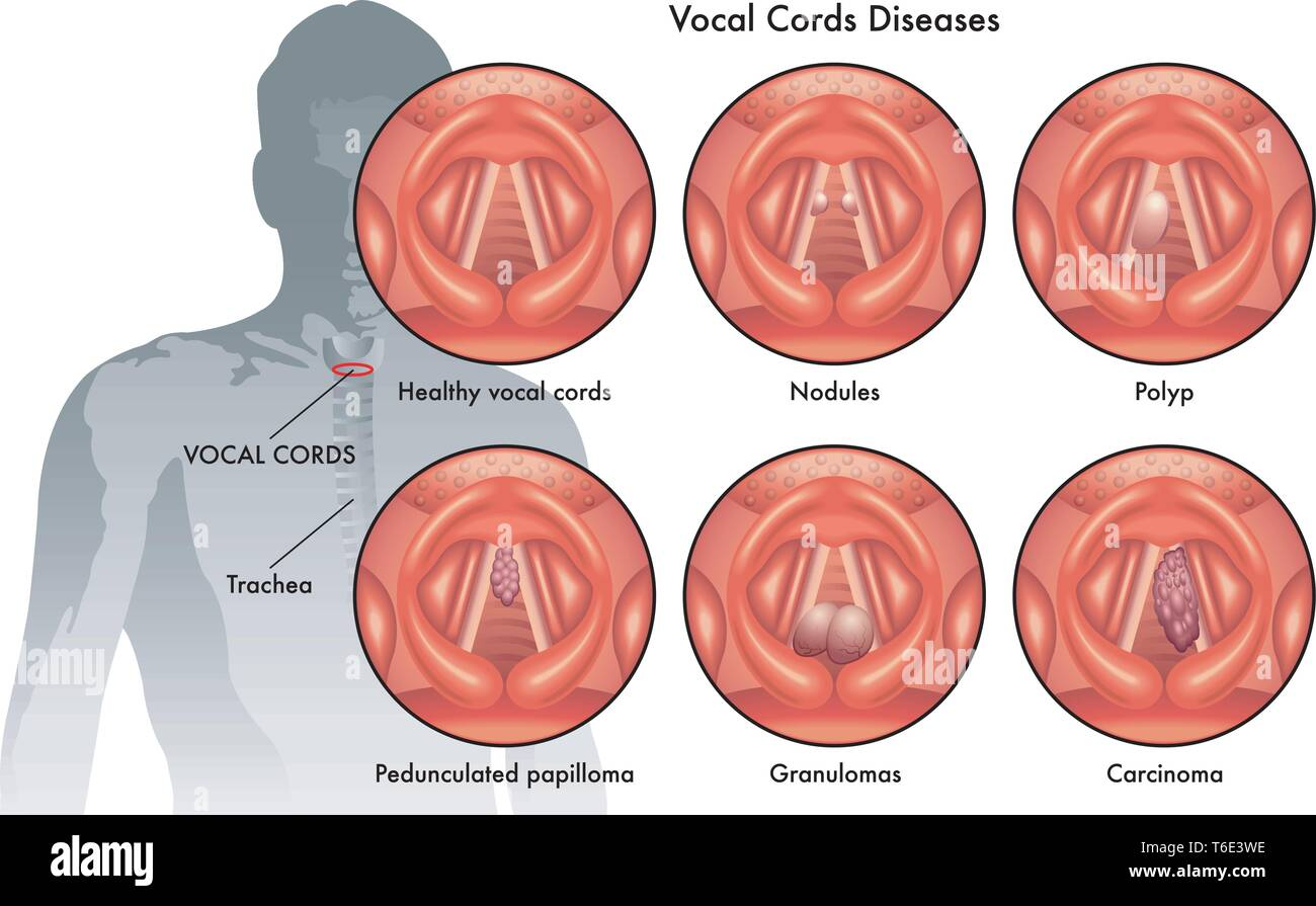 Medical illustration of the vocal cord diseases - Stock Image