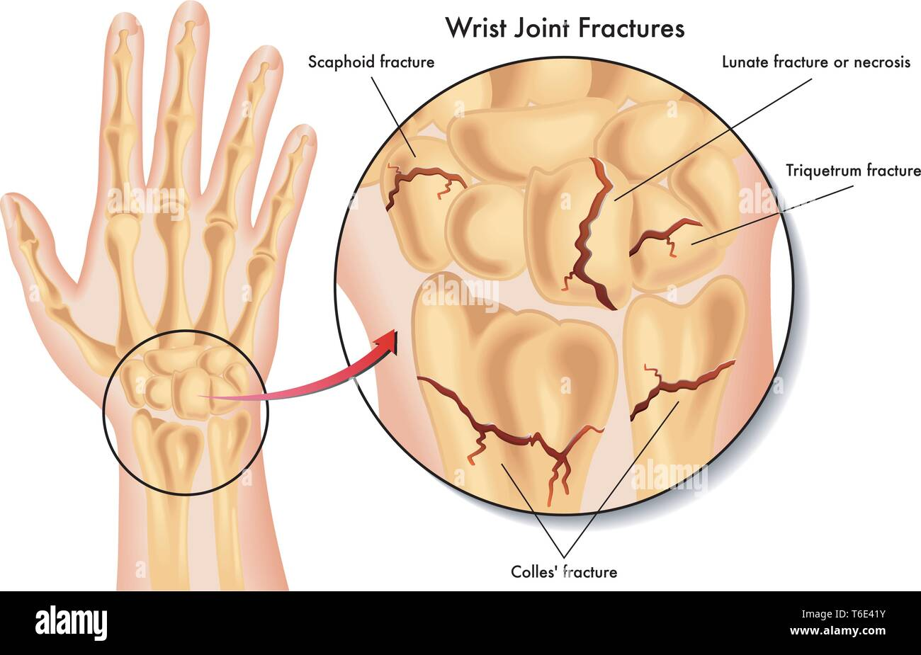 Medical illustration of the various kinds of fracture of the wrist - Stock Image