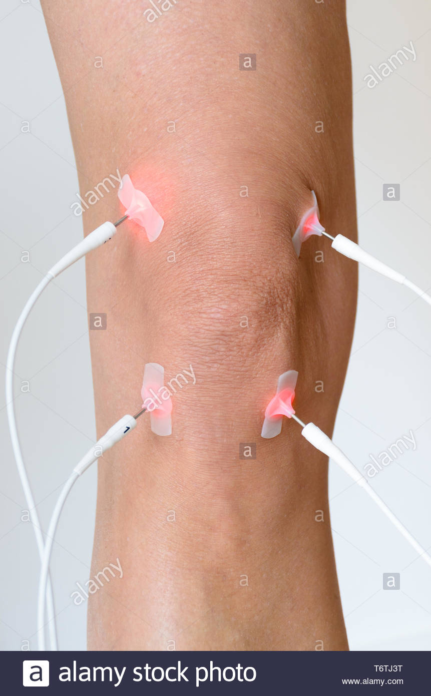 Patient having electrode therapy on a knee joint - Stock Image