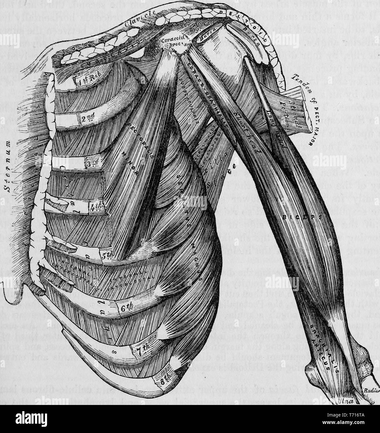 Anatomy illustration of the anterior Thoracic bones and muscles, from the book 'Anatomy, descriptive and surgical' by Henry Gray, Henry Vandyke Carter, and John Guise Westmacott, 1860. Courtesy Internet Archive. () - Stock Image