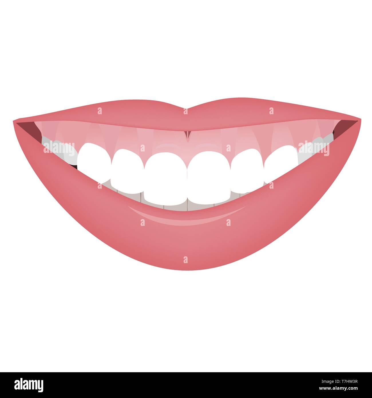 Mouth with a high smile line or gummy smile before the cosmetic, orthotropics or orthotropics correction. Vector illustration - Stock Vector