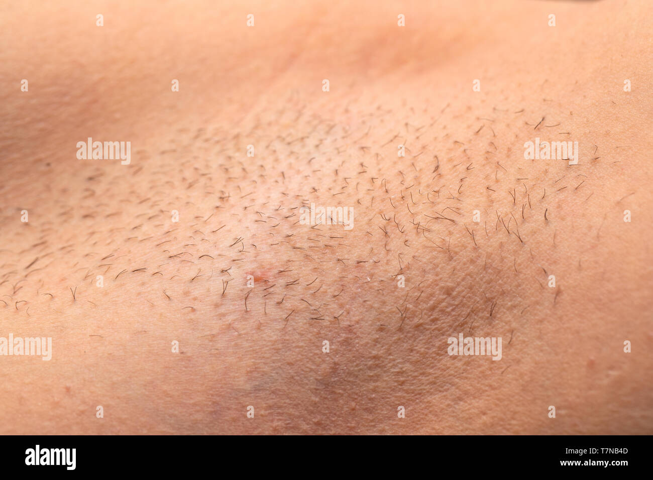 Close up picture of unshaved armpit, hair growing on human skin - Stock Image