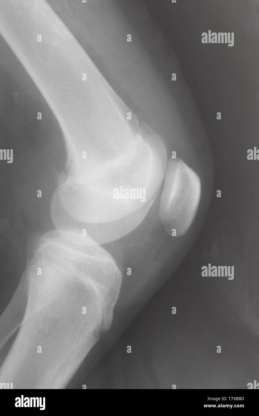side view of human knee-joint with kneecap on X-ray image Stock Photo