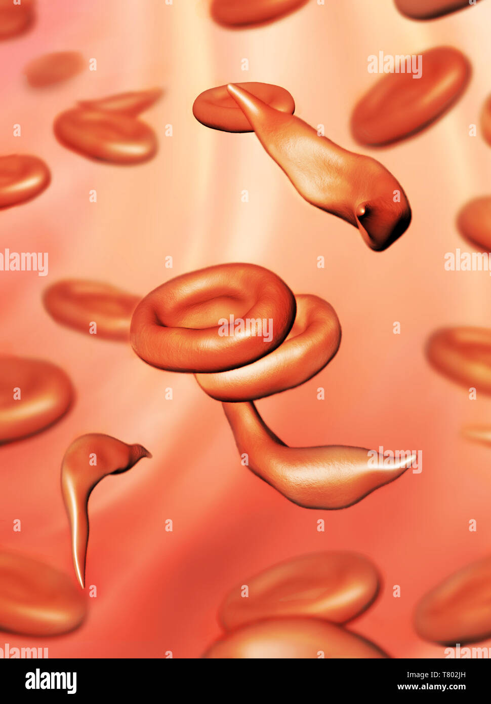 Sickle Cells, Illustration - Stock Image