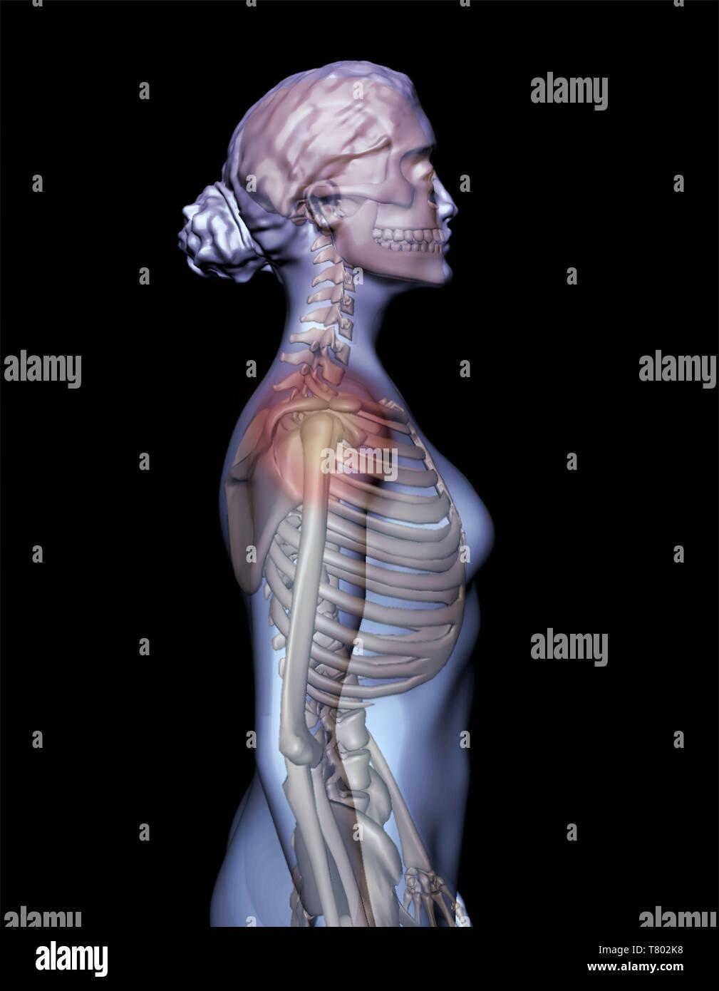 Shoulder Pain, Illustration - Stock Image