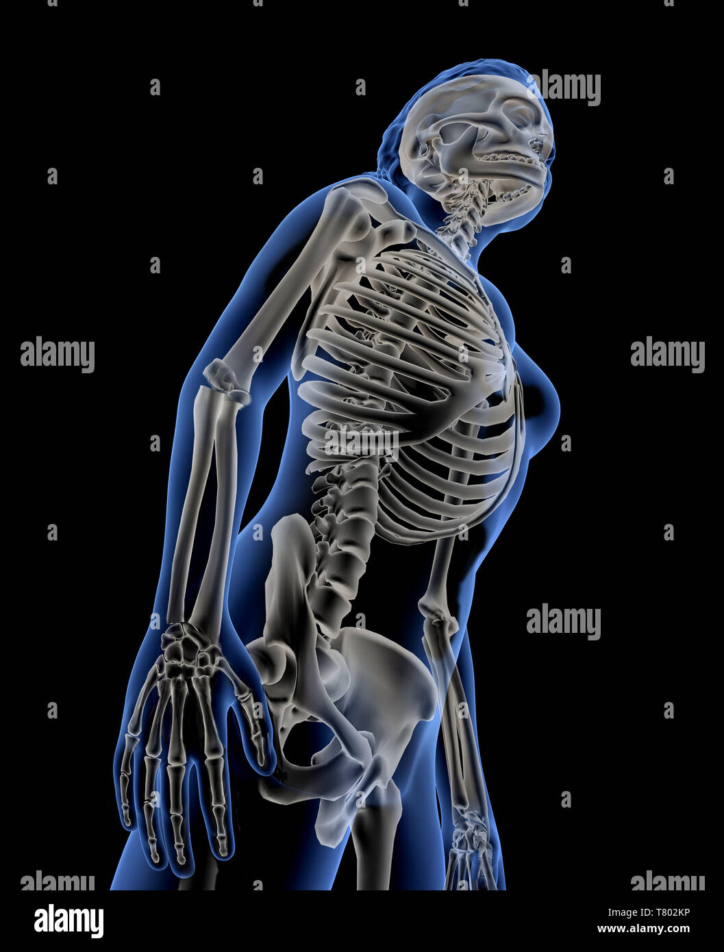 Woman with Visible Skeleton, Illustration - Stock Image