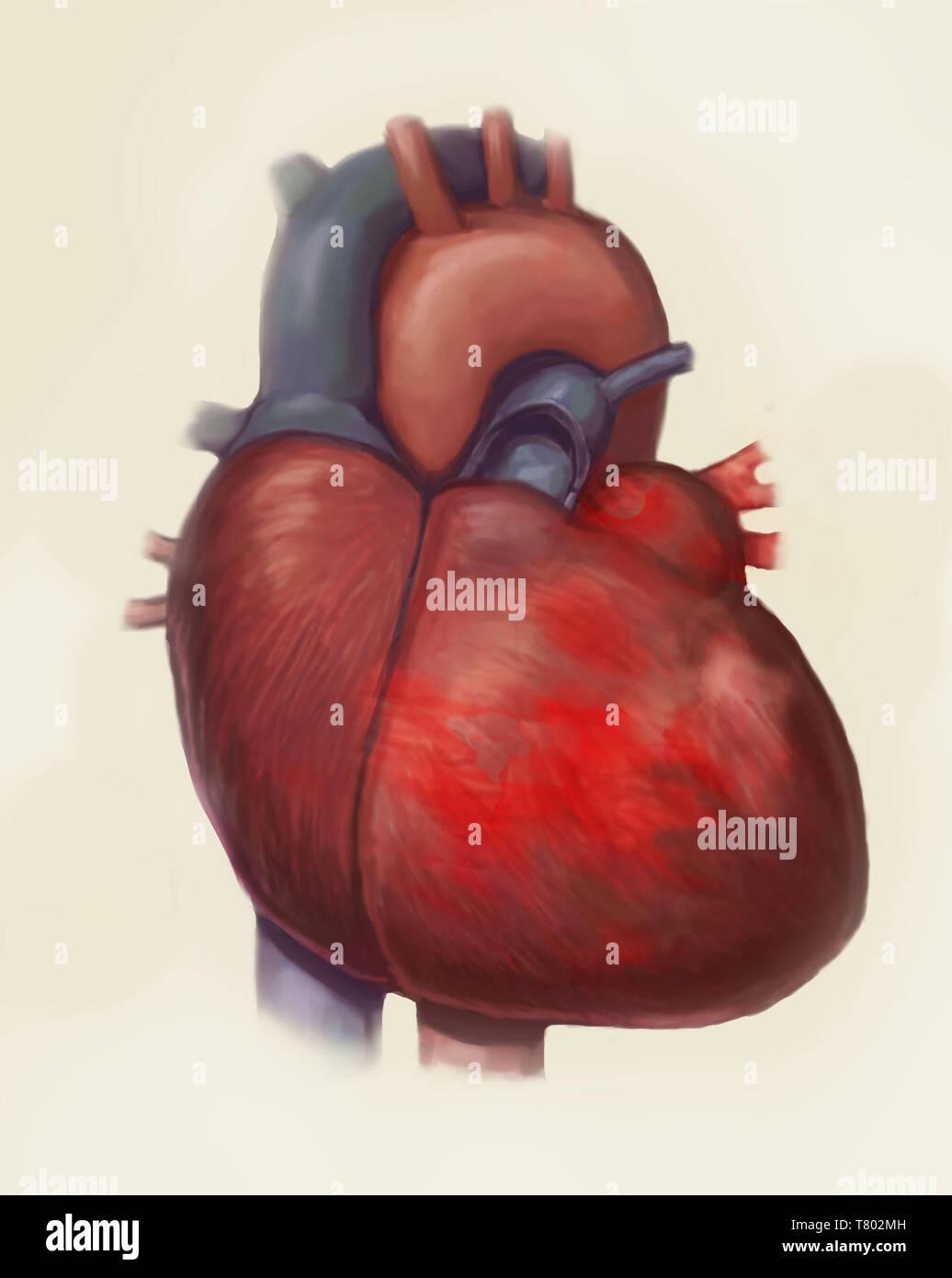 Heart Failure, Illustration - Stock Image