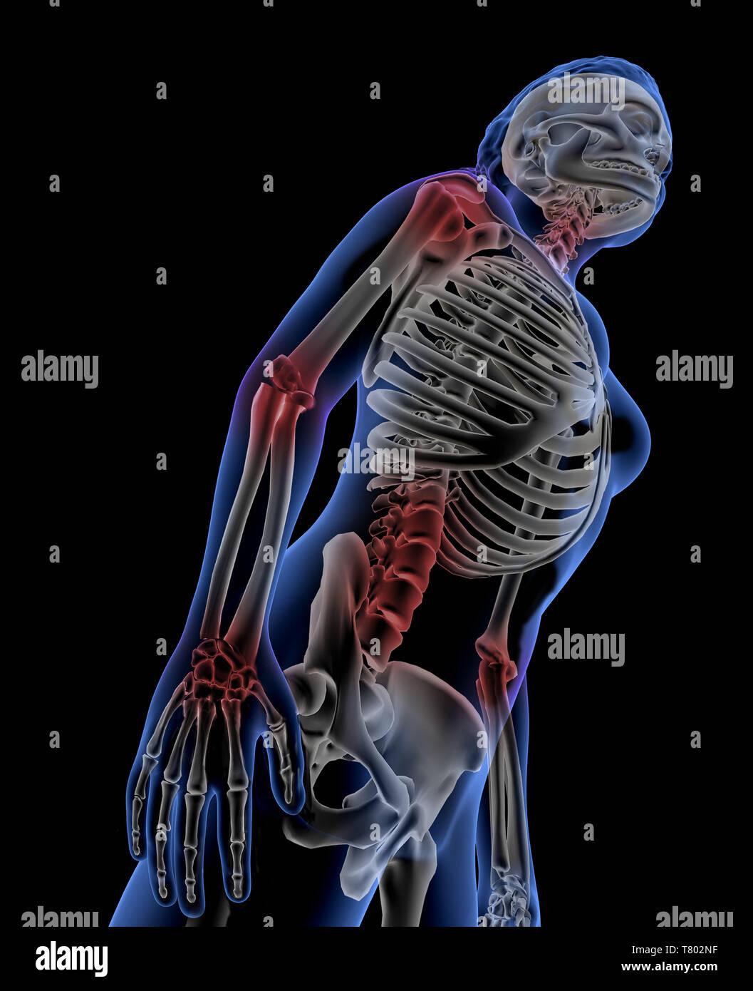Arthritis, Illustration - Stock Image