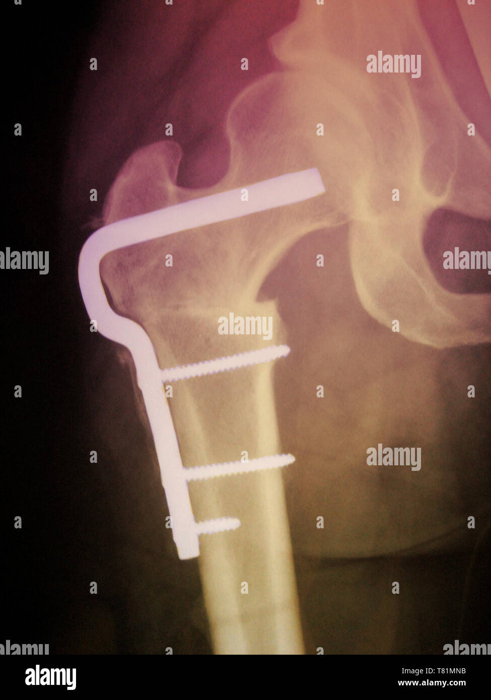 Femoral Osteotomy, X-Ray - Stock Image