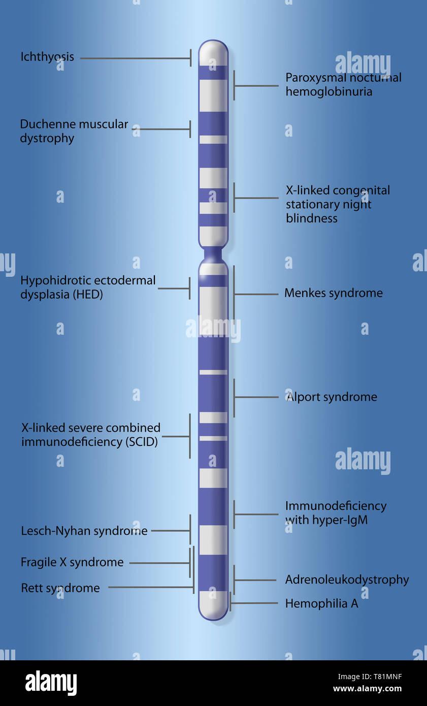 X Chromosome Map of Disease, Illustration - Stock Image