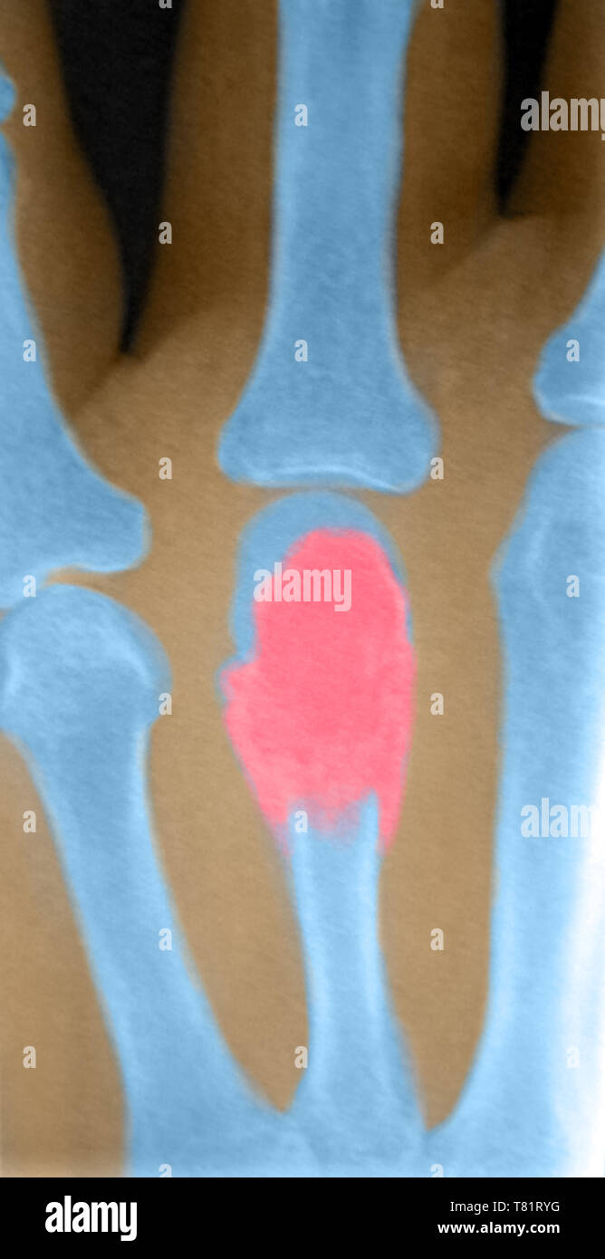 Giant Cell Bone Tumor in Hand, X-Ray - Stock Image