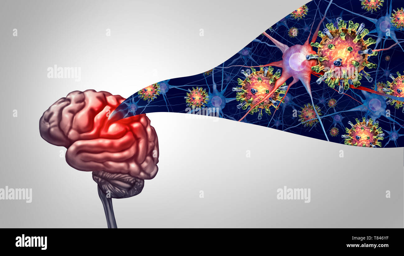 Meningitis and encephalitis viral infection in the brain as a medical concept with 3D illustration elements. - Stock Image