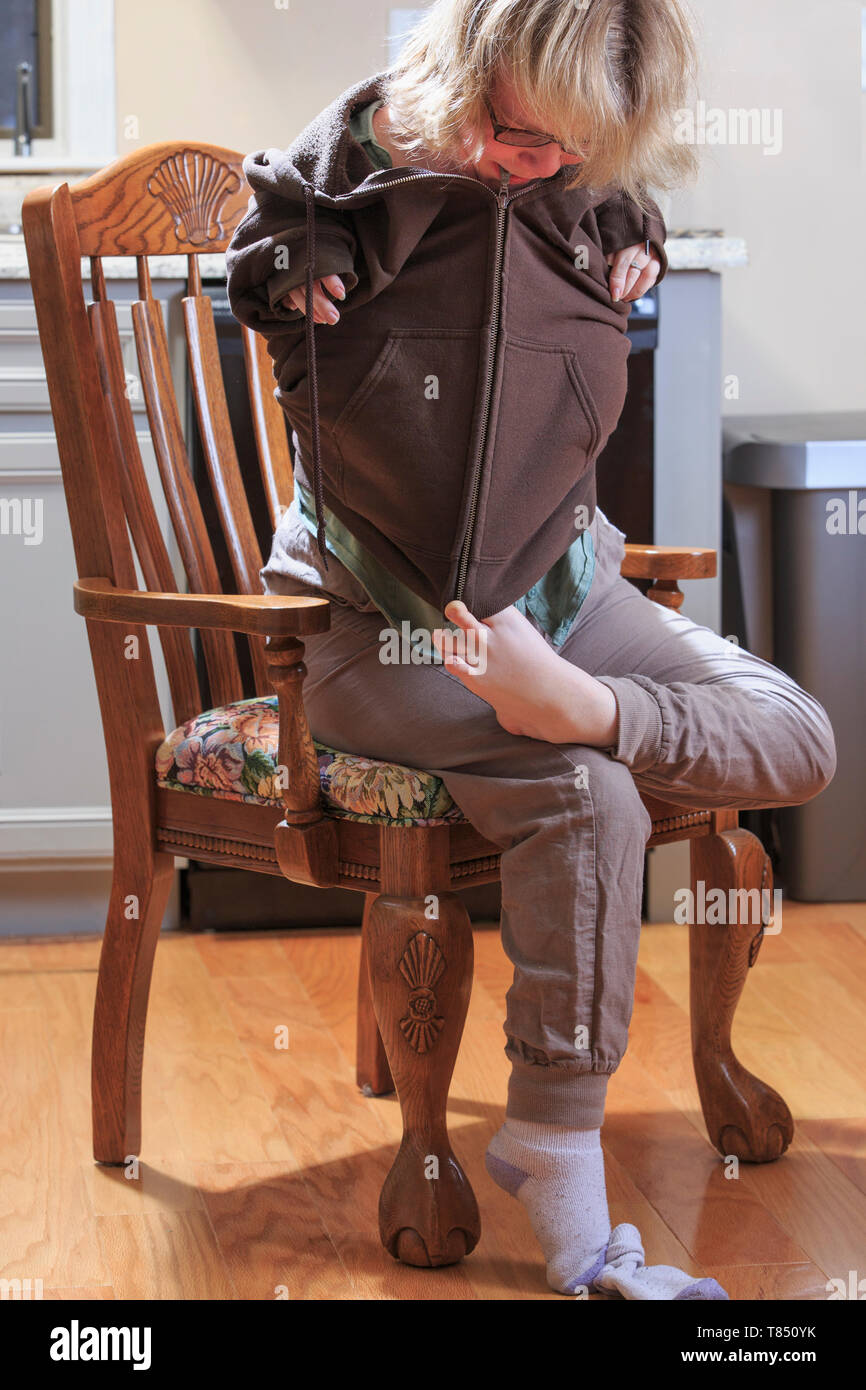 Woman with TAR Syndrome putting on her jacket and zipping it with her feet - Stock Image