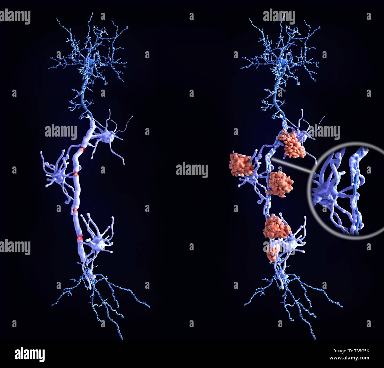 Healthy neurons and nerve damage in multiple sclerosis - Stock Image