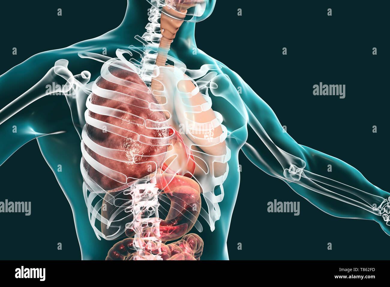 Grey hepatisation of lobar pneumonia, illustration - Stock Image