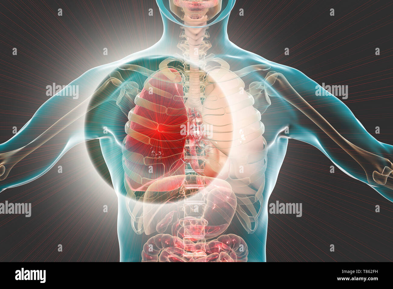 Red hepatisation of lobar pneumonia, conceptual illustration - Stock Image