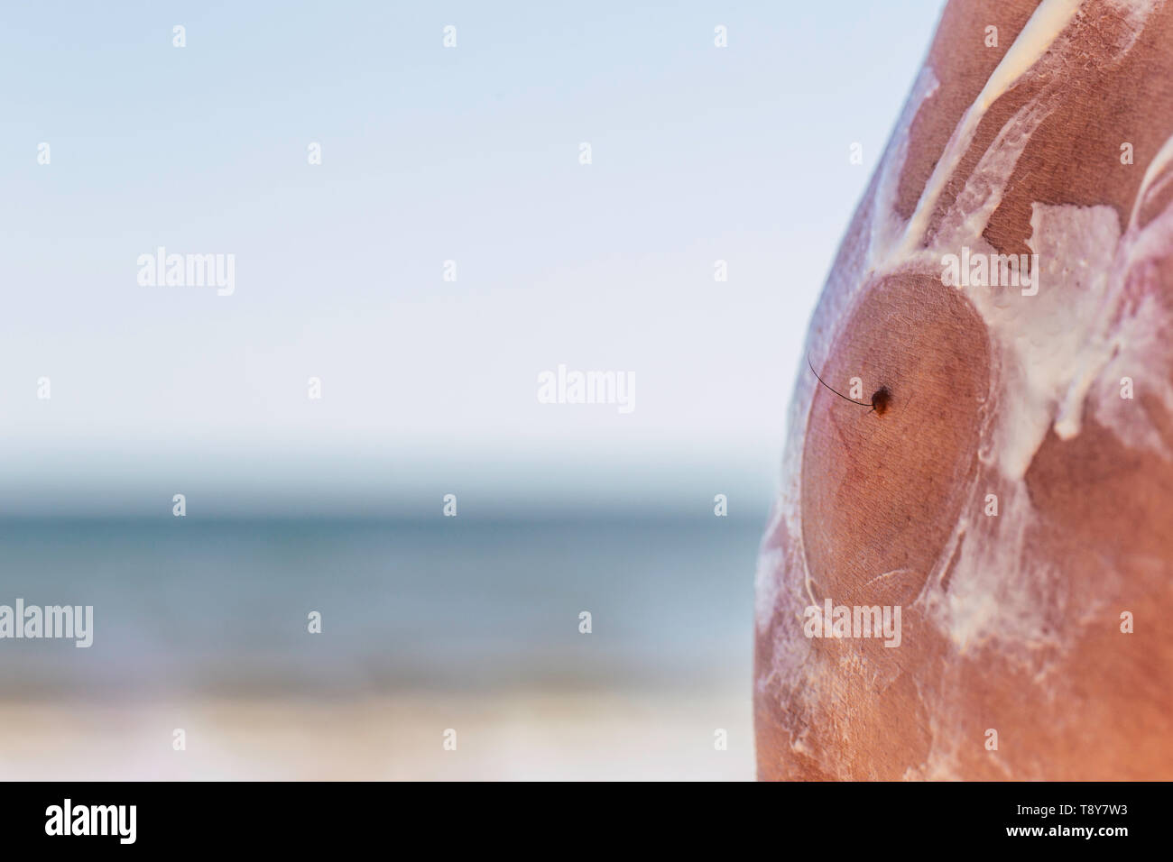 Close Up Of A Caucasian Man Applying Solar Protection To Mole With Hair Dry Skin At The Beach Cancer Concept Skin Care Stock Photo Alamy
