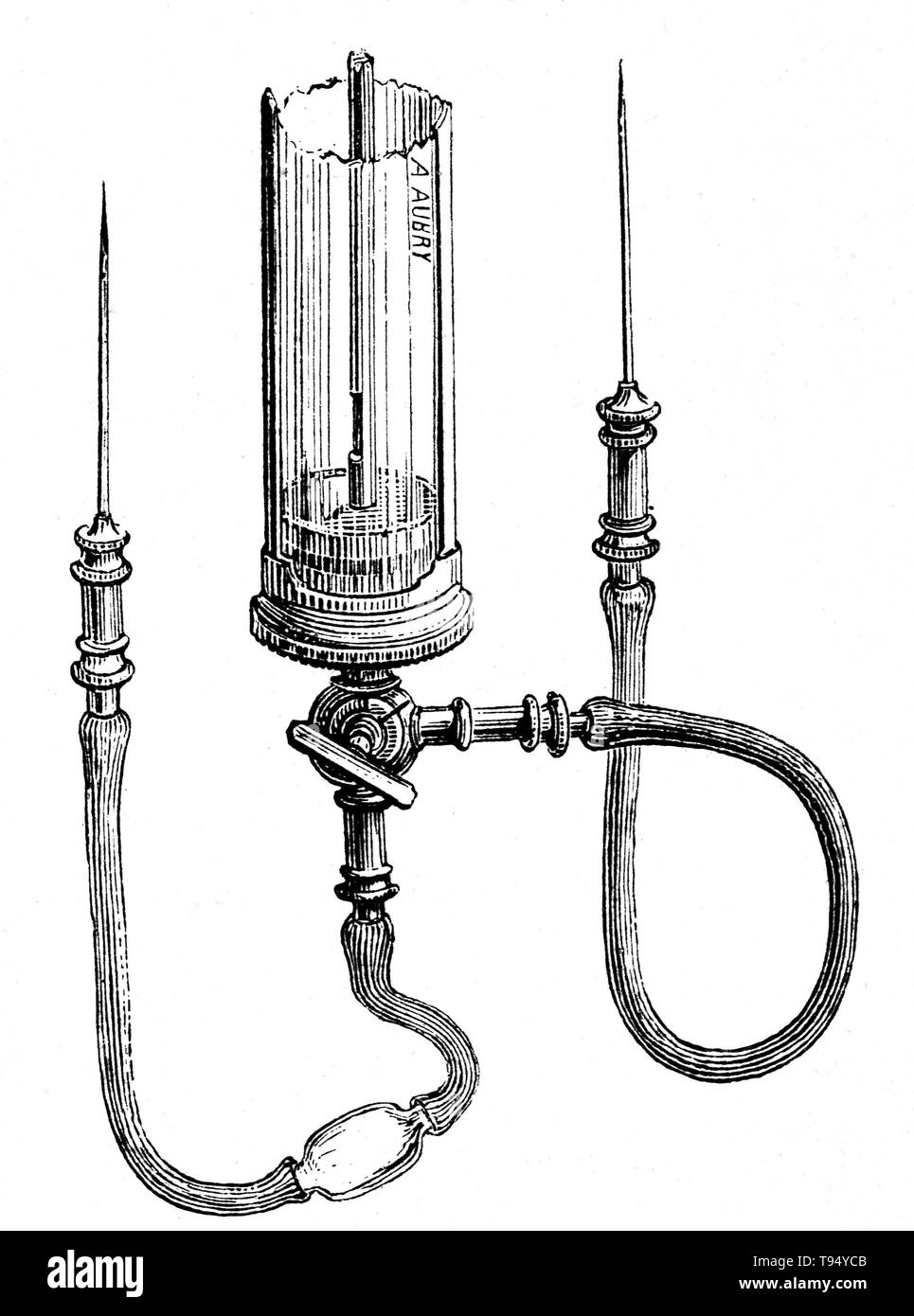 Blood transfusion apparatus by LeBlonds and Collins, from 1876. Beginning with Harvey's experiments with circulation of the blood, research into blood transfusion began in the 17th century, with successful experiments in transfusion between animals. However, successive attempts by physicians to transfuse animal blood into humans gave variable, often fatal, results. Early transfusions between humans were risky and many resulted in the death of the patient. It was not until 1901, when the Austrian Karl Landsteiner discovered human blood groups, that blood transfusions became safer. - Stock Image