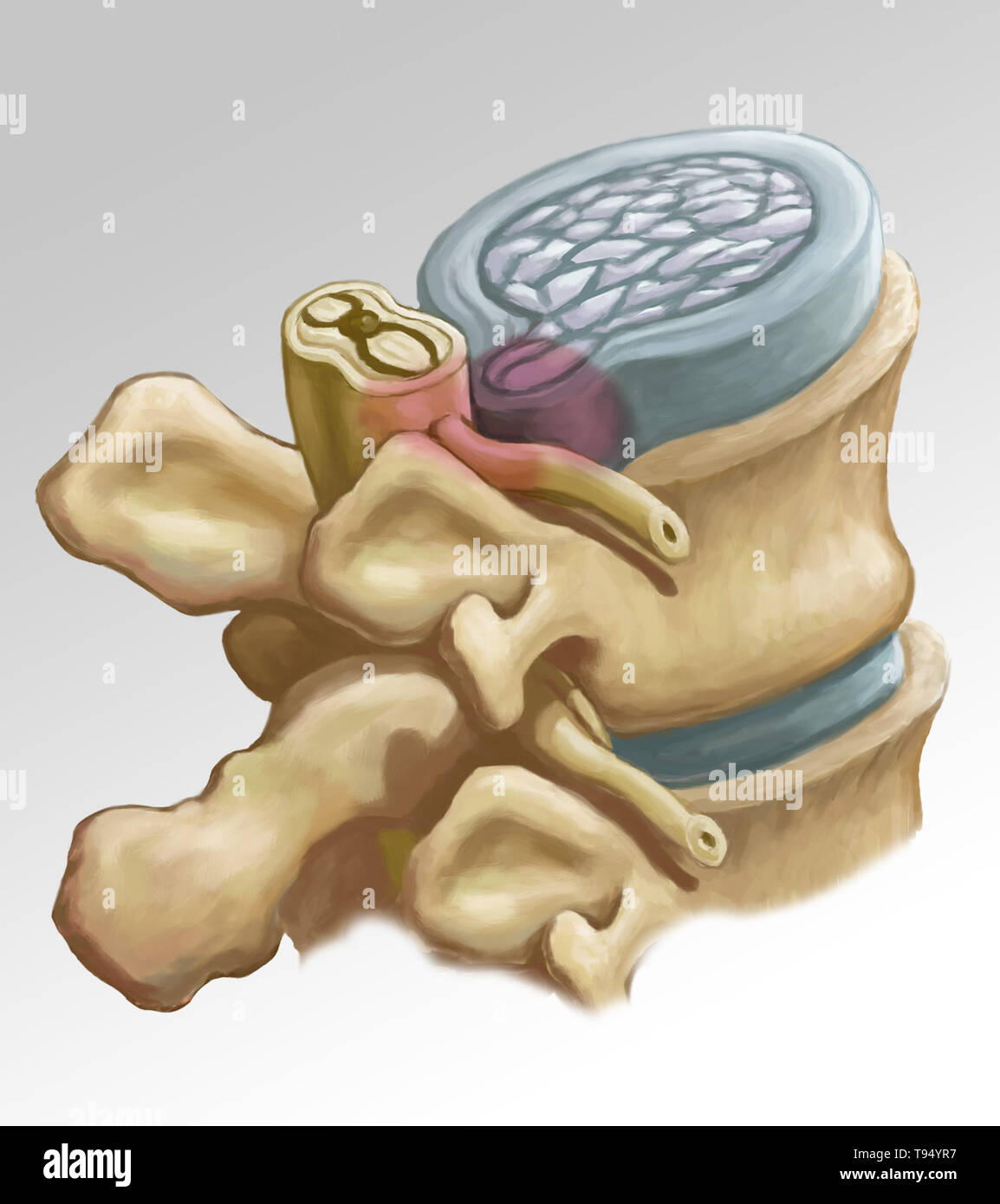 An illustration of the herniation of an intervertebral disk in the lumbar spine. Individuals suffer from a herniated disk when the outer fibrous tissue of the disk, known as the anulus fibrosus, can rupture due to trauma or old age. As a result, the gel-like center of the disk protrudes outward and compresses the nerves in the back, weakening muscles and causing severe local back pain. Stock Photo