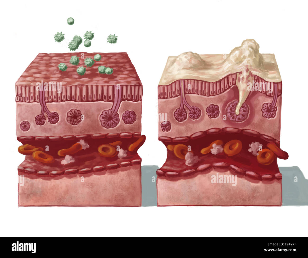 Illustration of a healthy nasal mucous membrane coming into contact with allergens (on the left) and the reaction that follows infection (on the right): overproduction of mucus, destruction of the mucous membrane epithelial, dilation of blood vessels, immune reaction in the macrophages and lymphocytes as a result of inflammation. - Stock Image