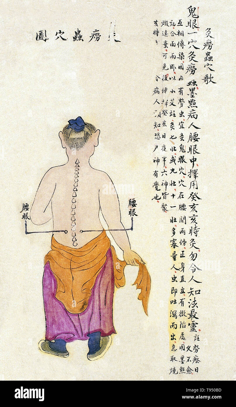 Acu-moxa point chart, showing the yaoyan (Lumbar Eyes) point, from Chuanwu lingji lu (Record of Sovereign Teachings), by Zhang Youheng, a treatise on acu-moxa in two volumes. This work survives only in a manuscript draft, completed in 1869 (8th year of the Tongzhi reign period of the Qing dynasty). - Stock Image