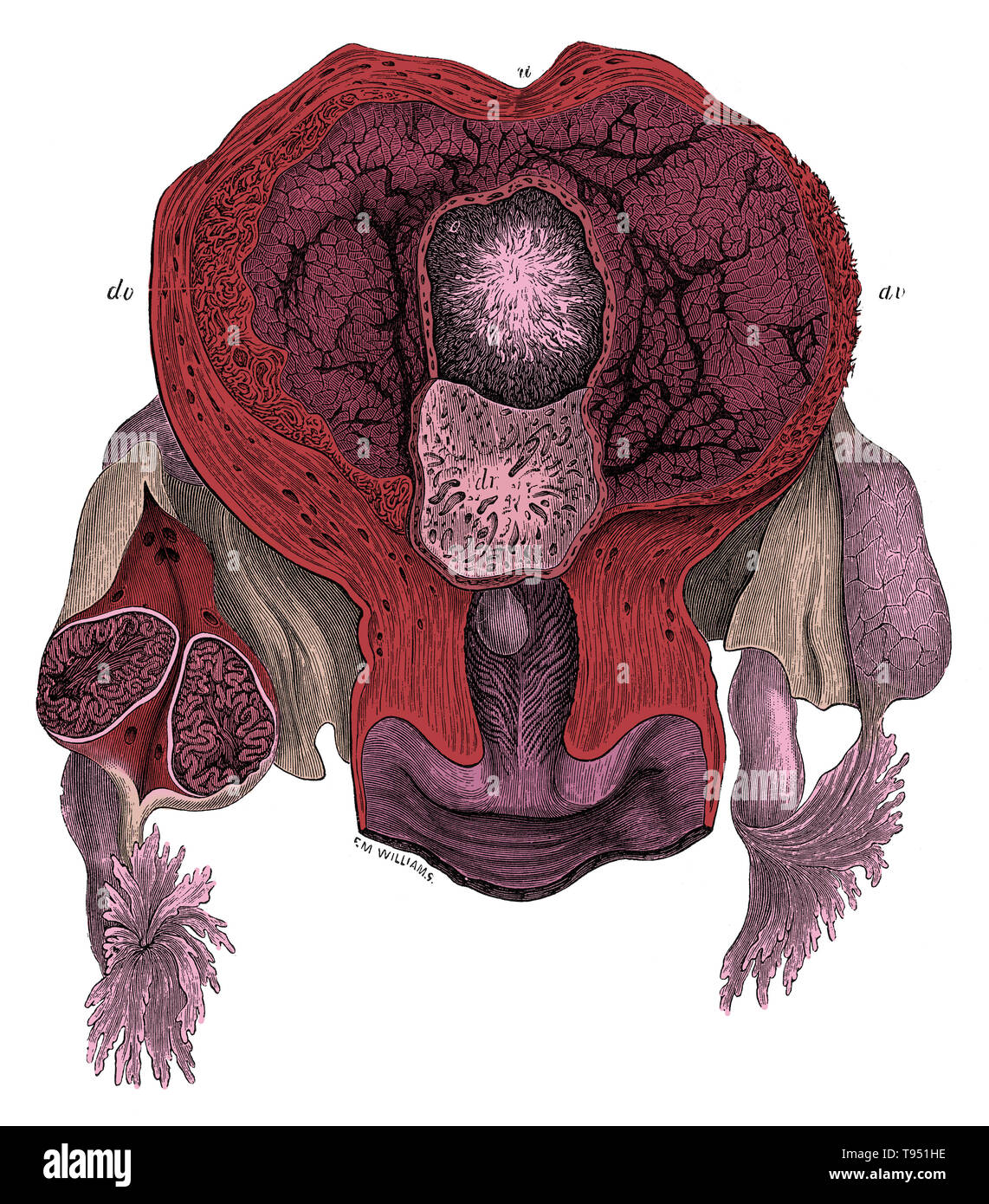 View of the interior of the human gravid uterus at the 25th day. u, uterine wall; o, ovum with villous chorion; dv, decidua vera; dr, decidua reflexa, divided around the margin of the ovum, and turned down so as to expose its pitted surface, which has been removed from the ovum. The right ovary is divided, and shows in section the plicated condition of the early corpus luteum. Jones Quain (November, 1796 - January 31, 1865) was an Irish anatomist, professor of Anatomy and Physiology in the University of London, and author of Elements of Anatomy.  This image has been colorized. - Stock Image