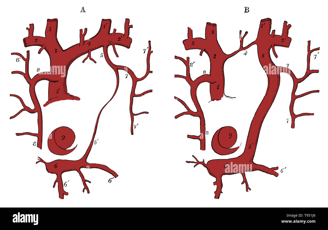 Diagram of the vestige of the left superior cava and of a case of its persistence. 1, 1', internal jugular veins; 2, 2', subclavian veins; 3, right innominate; 3', right or regular superior cava; 4, left innominate, normal in A, rudimentary in B; 5, the opening of the superior intercostal vein into the innominate; 5', vestige of the superior cava or duct of Cuvier, the left cava superior abnormally persistent; 6, coronary sinus; 6', coronary veins; 7, superior intercostal trunk of the left side (left cardinal vein); 8, principal azygos (right cardinal vein); 7', 8', some of the intercostal vei - Stock Image