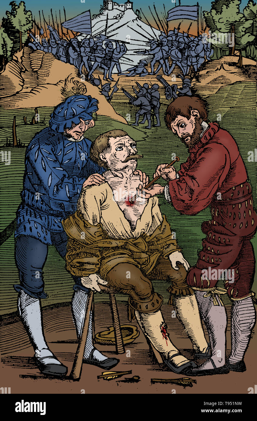Battlefield surgery, 1530. A wounded soldier having an arrowhead extracted from his chest as the battle continues. Image from Feldtbuch des Wundartzney (Fieldbook of Surgery) by H. von Gersdorff, Strasbourg. This image has been colorized. - Stock Image