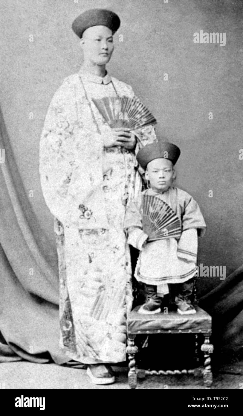 Chang Yu-sing the Chinese giant, and Chung Mow, a dwarf. Zhan Shichai AKA Chang Woo Gow (1841/47 - November 5, 1893) was a Chinese giant. His height was claimed to be over 8 feet, but there are no authoritative records. He left China in 1865 to travel to London where he appeared on stage, later travelling around Europe, and to the US and Australia as 'Chang the Chinese Giant'. Zhan received a good education in various countries, and developed a good understanding of ten languages. In America, he earned a salary of $500 a month. Kin Foo, the Chinese wife who accompanied Zhan from China, died in - Stock Image