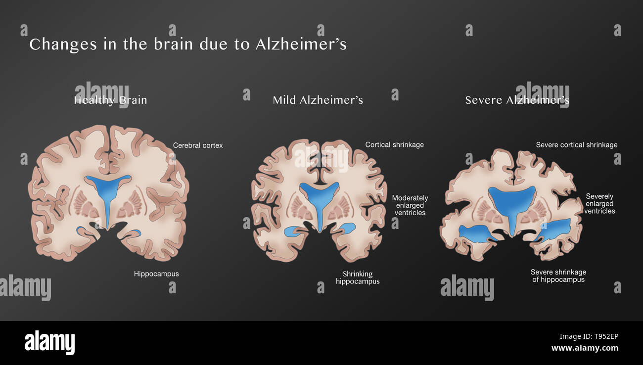 Illustration depicting the progression of Alzheimer's disease. On the left is a healthy brain. The middle brain displays cortical shrinkage, moderately enlarged ventricles, and a shrinking hippocampus, symptoms of mild Alzheimer's. The right brain shows severe cortical shrinkage, severely enlarged ventricles, and severe shrinkage of the hippocampus, indicative of severe Alzheimer's. - Stock Image