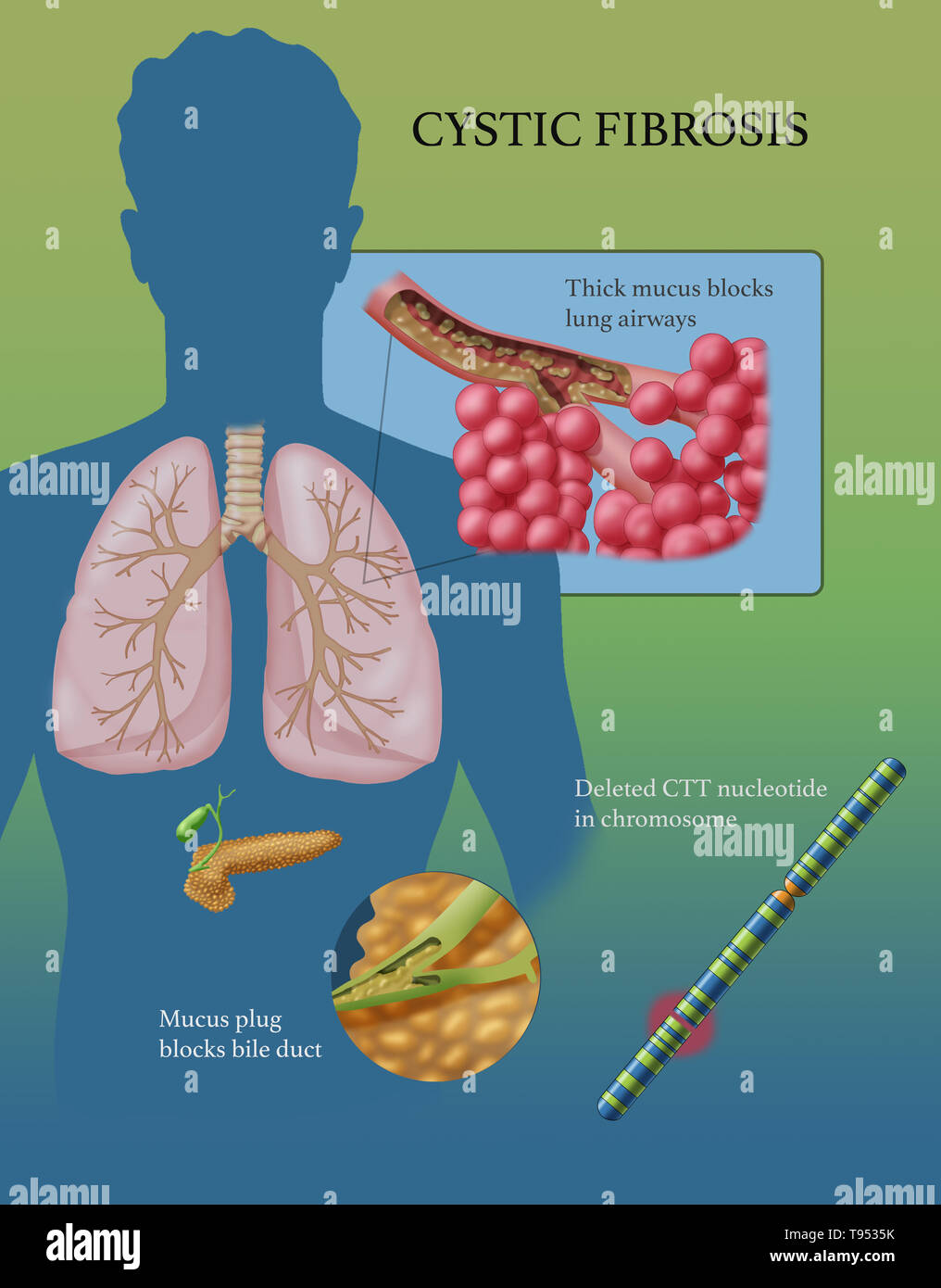 Cystic fibrosis (CF) is a genetic disorder that affects mostly the lungs, but also the pancreas, liver, kidneys, and intestine. Long-term issues include difficulty breathing and coughing up mucus as a result of frequent lung infections. Other signs and symptoms may include sinus infections, poor growth, fatty stool, clubbing of the fingers and toes, and infertility in some males. Different people may have different degrees of symptoms. - Stock Image