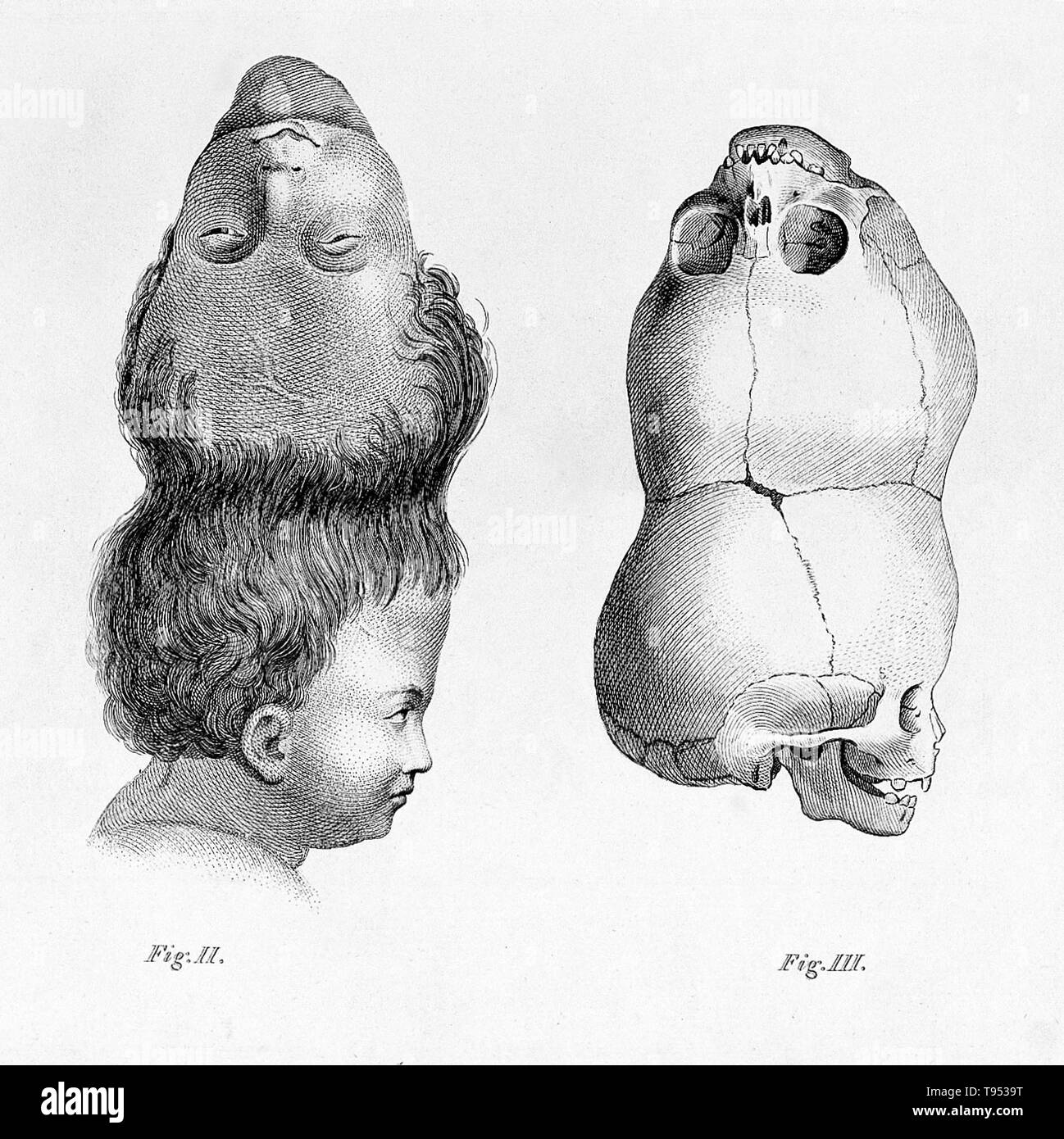The so-called 'Two-Headed Boy of Bengal' was born in 1783 and died of a cobra bite in 1787. His skull remains in the collection of the Hunterian Museum of the Royal College of Surgeons of London. Craniopagus parasiticus is an extremely rare type of parasitic twinning occurring in about 4 to 6 of 10,000,000 births. In craniopagus parasiticus, a parasitic twin head with an undeveloped body is attached to the head of a developed twin. - Stock Image