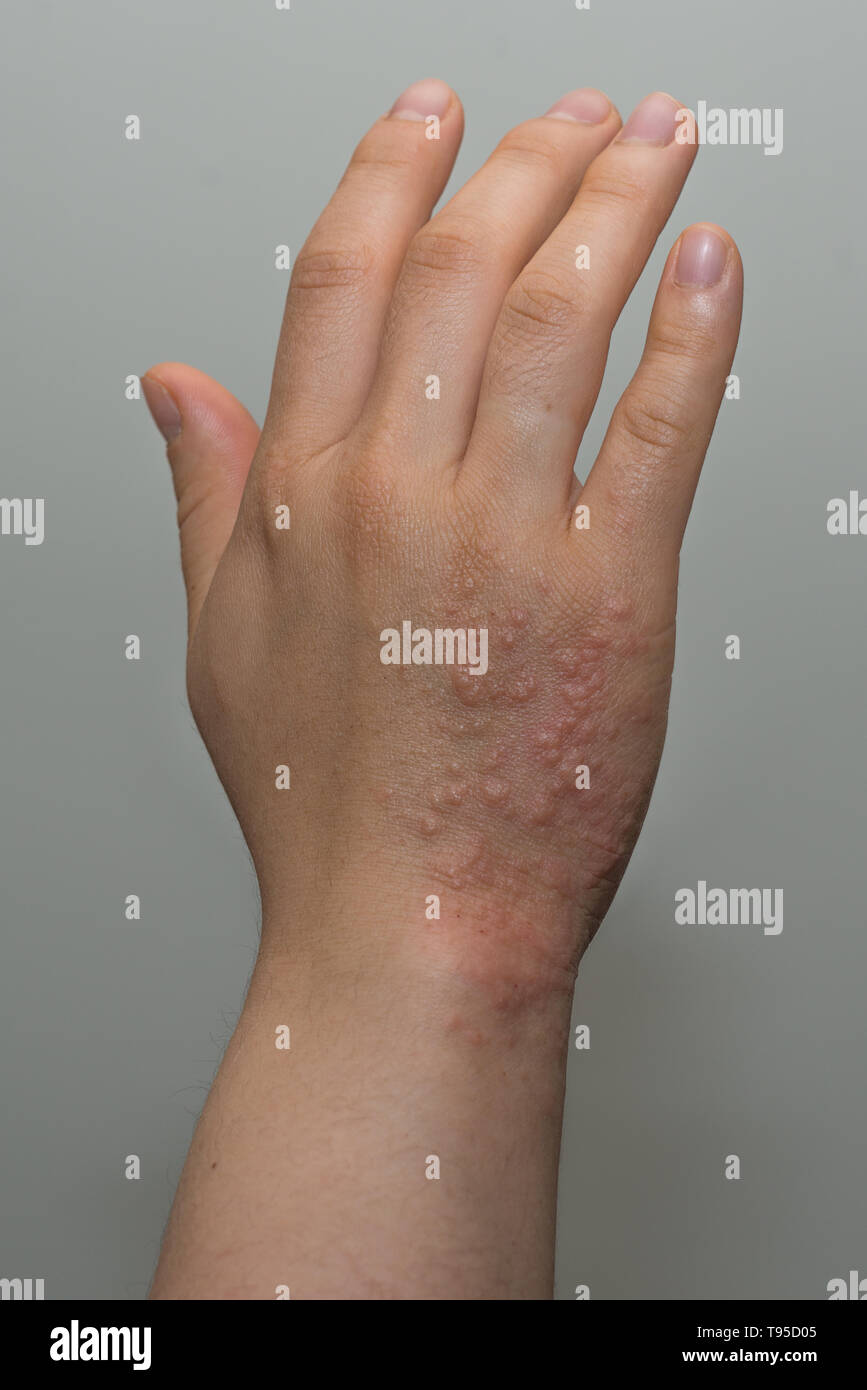 Shingles (Herpes Zoster) rash on hand - Stock Image