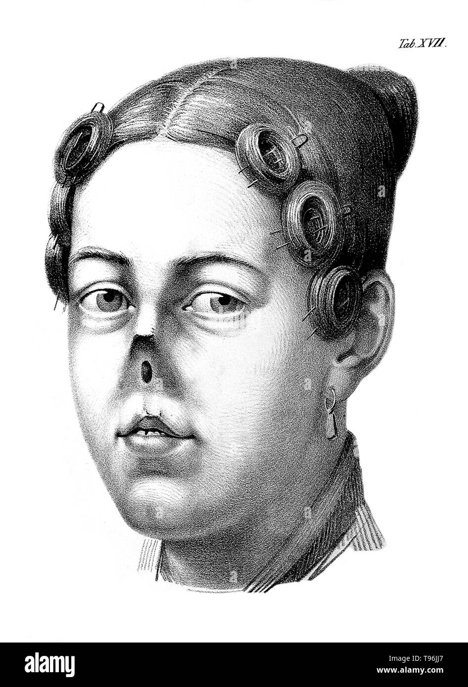 Chirurgische Erfahrungen. Woman with no nose. Johann Friedrich Dieffenbach (February  1, 1792 -  November 11, 1847) was a German surgeon who specialized in skin transplantation and plastic surgery. His work in rhinoplastic and maxillofacial surgery established many modern techniques of reconstructive surgery. Before the discovery of blood typing and blood matching, Dieffenbach researched blood transfusion. - Stock Image