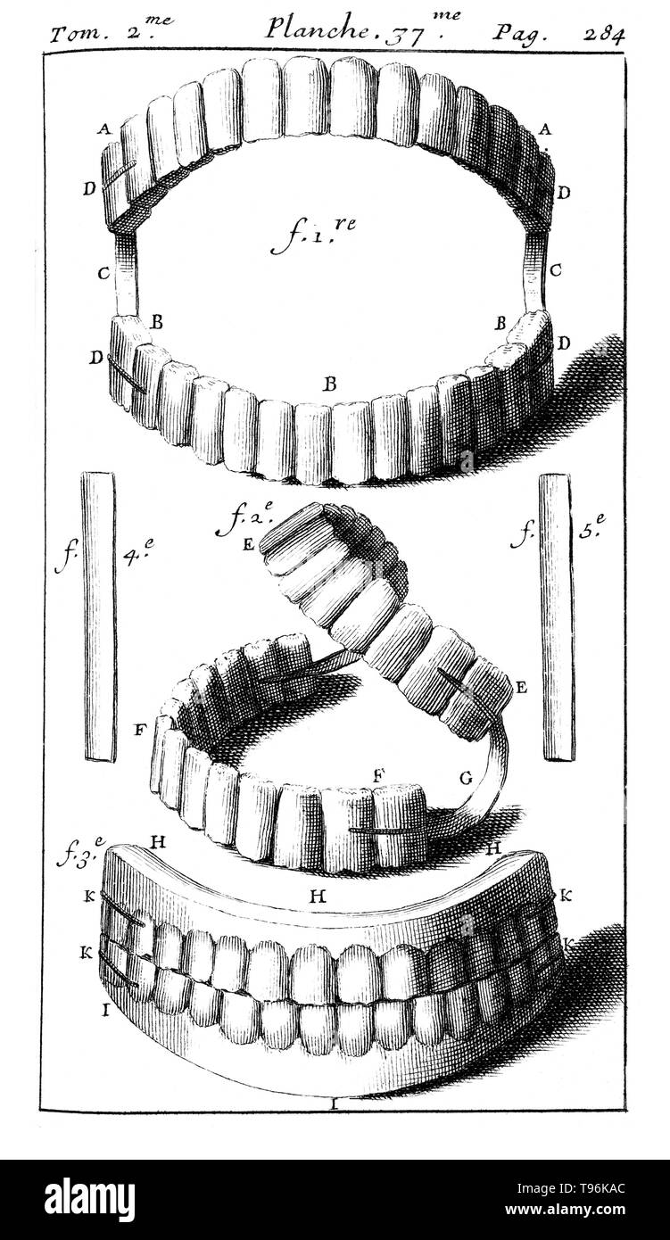 Complete set of dentures with springs. Tome 2. Planche 37. P. 284. Pierre Fauchard (1678 - March 22, 1761) was a French physician, credited as being the father of modern dentistry. He is widely known for writing the first complete scientific description of dentistry, Le Chirurgien Dentiste (The Surgeon Dentist), published in 1728. - Stock Image