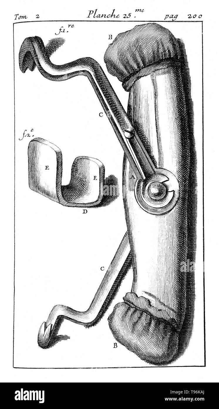 Dental pelican for tooth extraction. Tome 2. Planche 25. Page 200. Pierre Fauchard (1678 - March 22, 1761) was a French physician, credited as being the father of modern dentistry. He is widely known for writing the first complete scientific description of dentistry, Le Chirurgien Dentiste (The Surgeon Dentist), published in 1728. - Stock Image