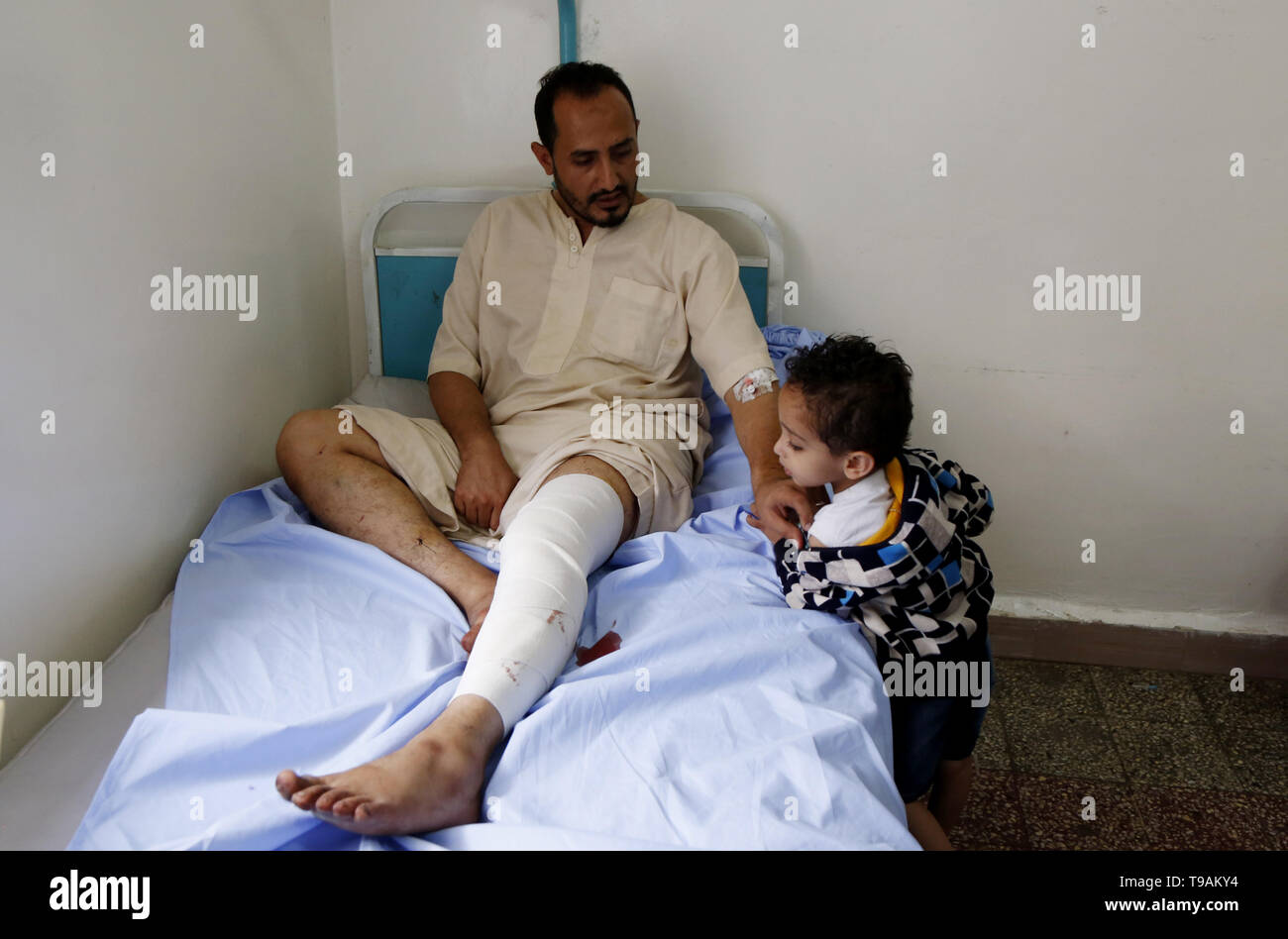 Sanna, Yemen. 17th May, 2019. A man injured in an airstrike receives treatment at a hospital in Sanaa, Yemen, May 17, 2019. The Saudi Arabia-led coalition launched airstrikes on Houthi rebels' targets in the Yemeni capital Sanaa on Thursday morning. At least six-member family were killed and more than 30 others were wounded when a coalition airstrike hit a house in the center of Sanaa, the rebel-controlled Health Ministry said in a statement, adding that the death toll could rise as many injured remain in critical condition. Credit: Mohammed Mohammed/Xinhua/Alamy Live News - Stock Image
