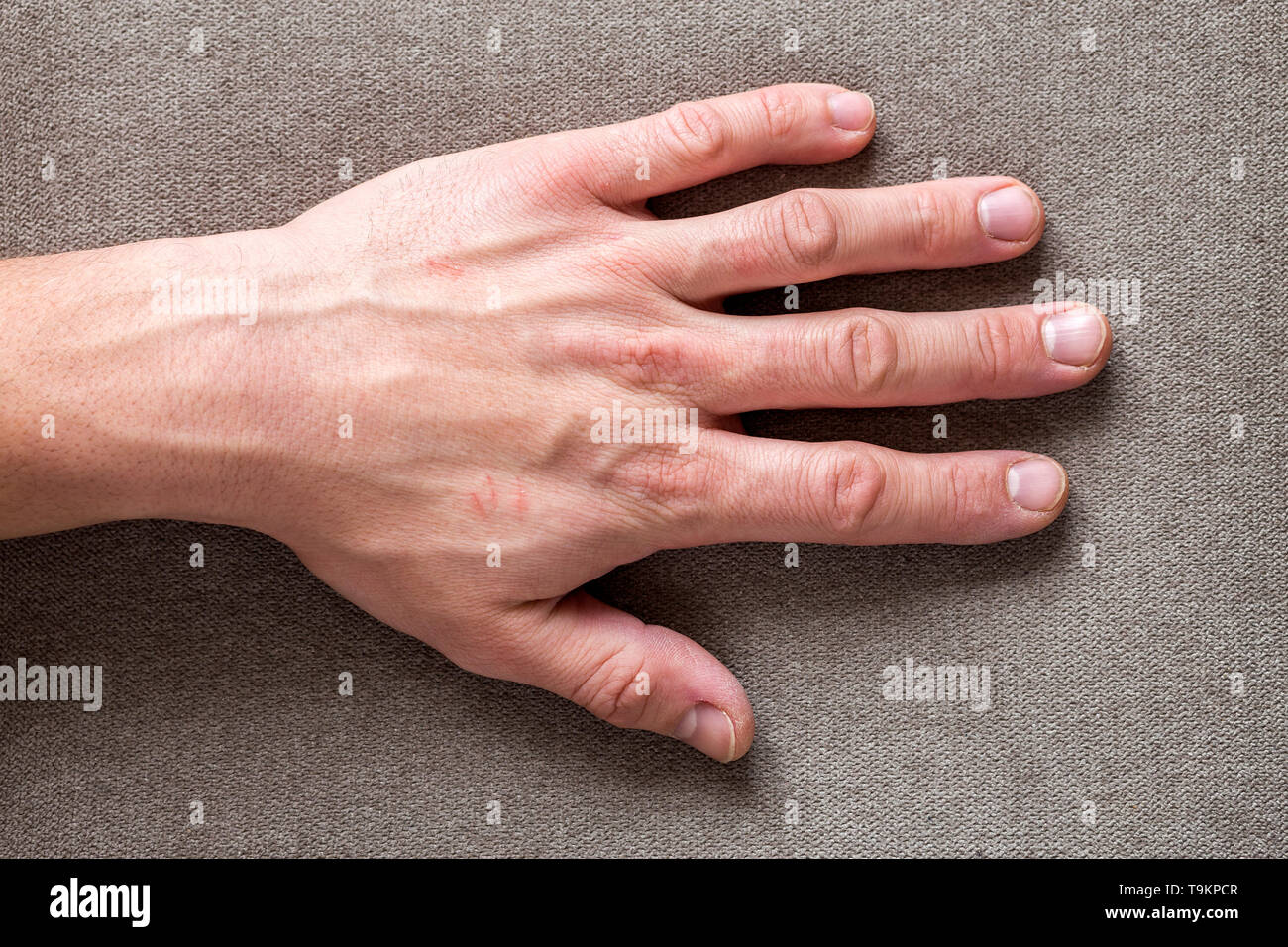 Close-up of male masculine worker hand with rough skin and short fingernails resting on flat copy space background, top view. Manual labor and hands c - Stock Image