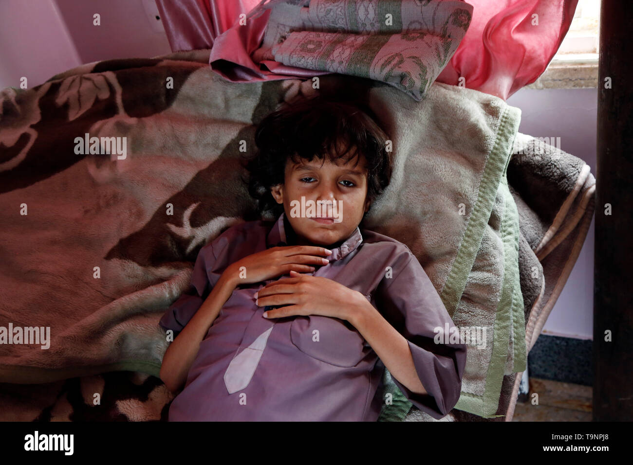 (190520) -- SANAA, May 20, 2019 (Xinhua) -- A malnourished child lies on a bed while receiving treatment at a malnutrition care-center in Sanaa, Yemen, on May 19, 2019. With 360,000 children suffering from severe acute malnutrition and 2.5 million - or half of all children under the age of five - stunted, the country is spiralling perilously close to the brink, Executive Director of the United Nations Children's Fund  (UNICEF) Henrietta Fore warned. (Xinhua/Mohammed Mohammed) - Stock Image