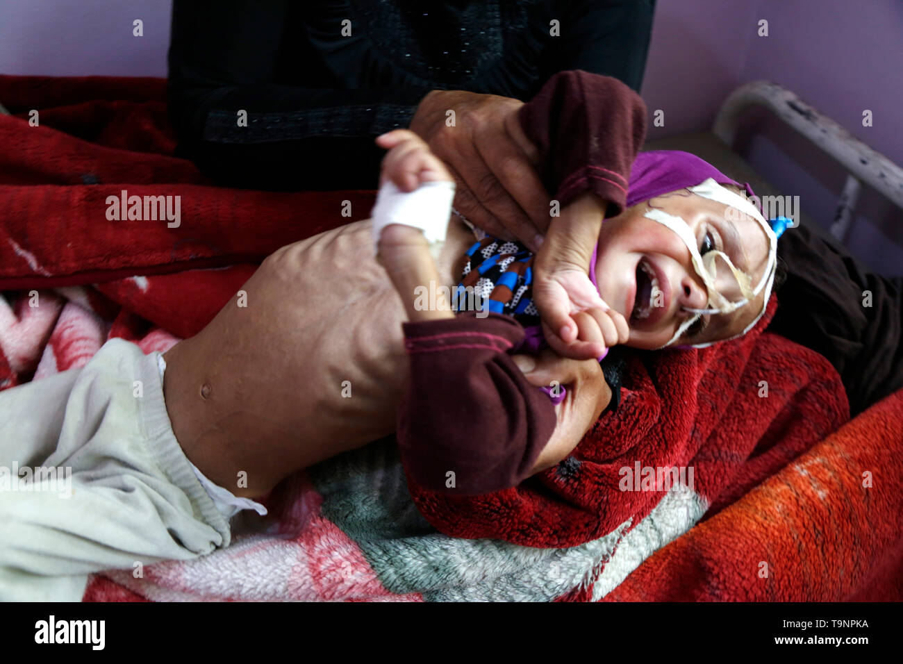 (190520) -- SANAA, May 20, 2019 (Xinhua) -- A mother shows the chest of her malnourished daughter who lies on a bed while receiving treatment at a malnutrition care-center in Sanaa, Yemen, on May 19, 2019. With 360,000 children suffering from severe acute malnutrition and 2.5 million - or half of all children under the age of five - stunted, the country is spiralling perilously close to the brink, Executive Director of the United Nations Children's Fund  (UNICEF) Henrietta Fore warned. (Xinhua/Mohammed Mohammed) - Stock Image