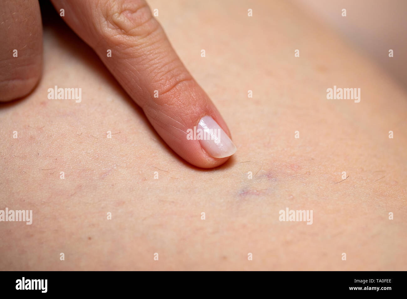 Close up picture of woman pointing at her painful varicose veins on the leg - Stock Image