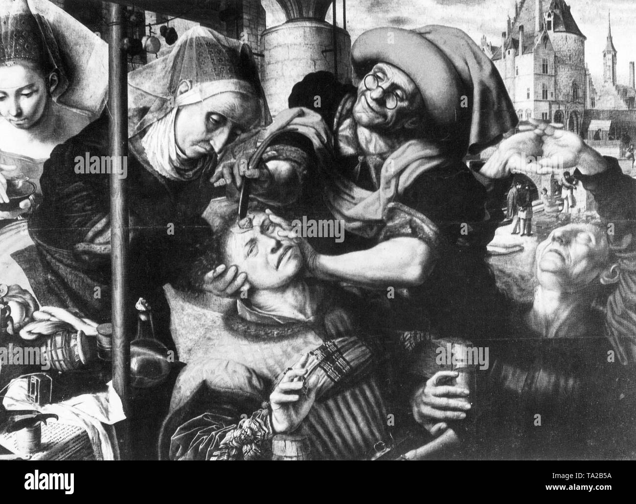 "Photo of the painting ""The Surgeon"" by Jan Sanders van Hemessen. Such operations were referred to as ""stone cutting"", because according to a superstition stupidity and idiocy could be removed from a patient's head in the form of a stone. The quack conjured up a stone from the cut on the brain with a trick. Therefore the ""stone cutting"" was considered a symbol of human stupidity. Stock Photo"