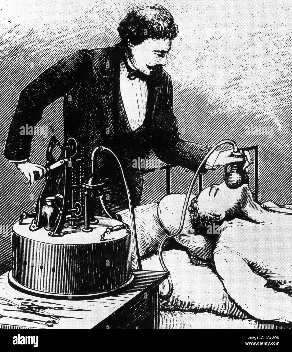 Anesthesia of a patient with chloroform, the doctor still wears a business suit, circa 1875 - Stock Image
