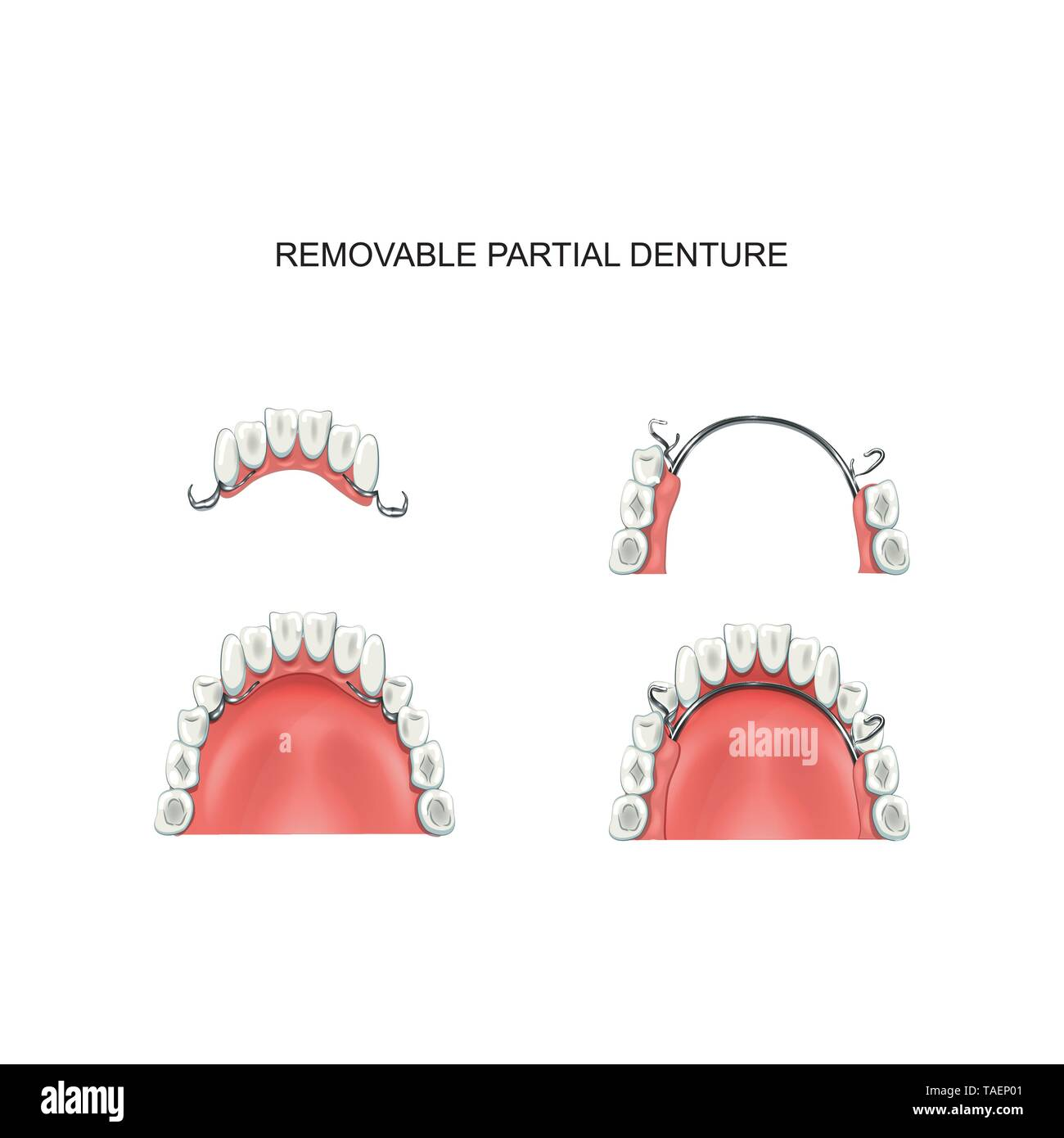 vector illustration of removable partial denture. prosthetics - Stock Image