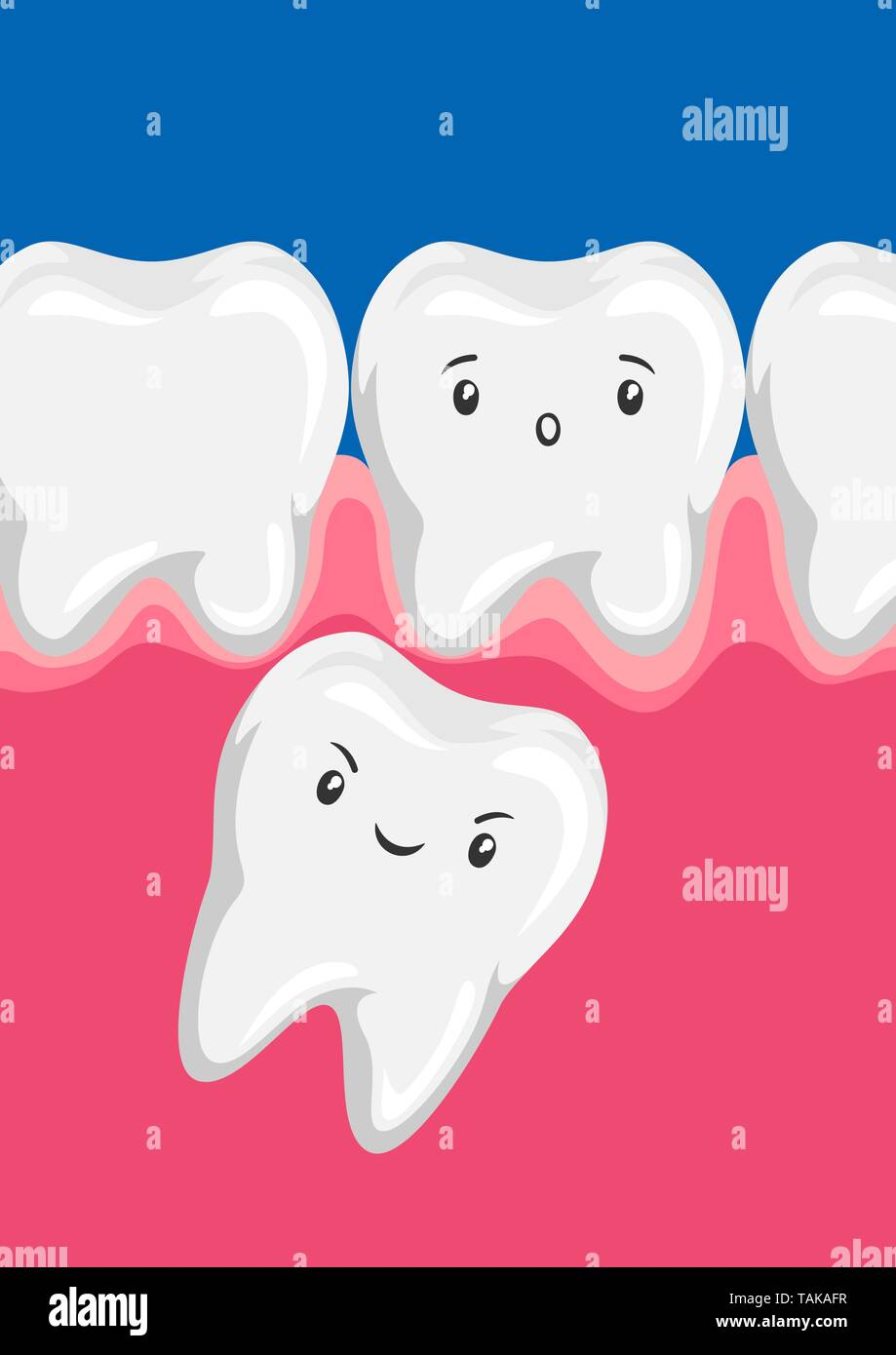 Illustration of molar squeezes out baby tooth. - Stock Image