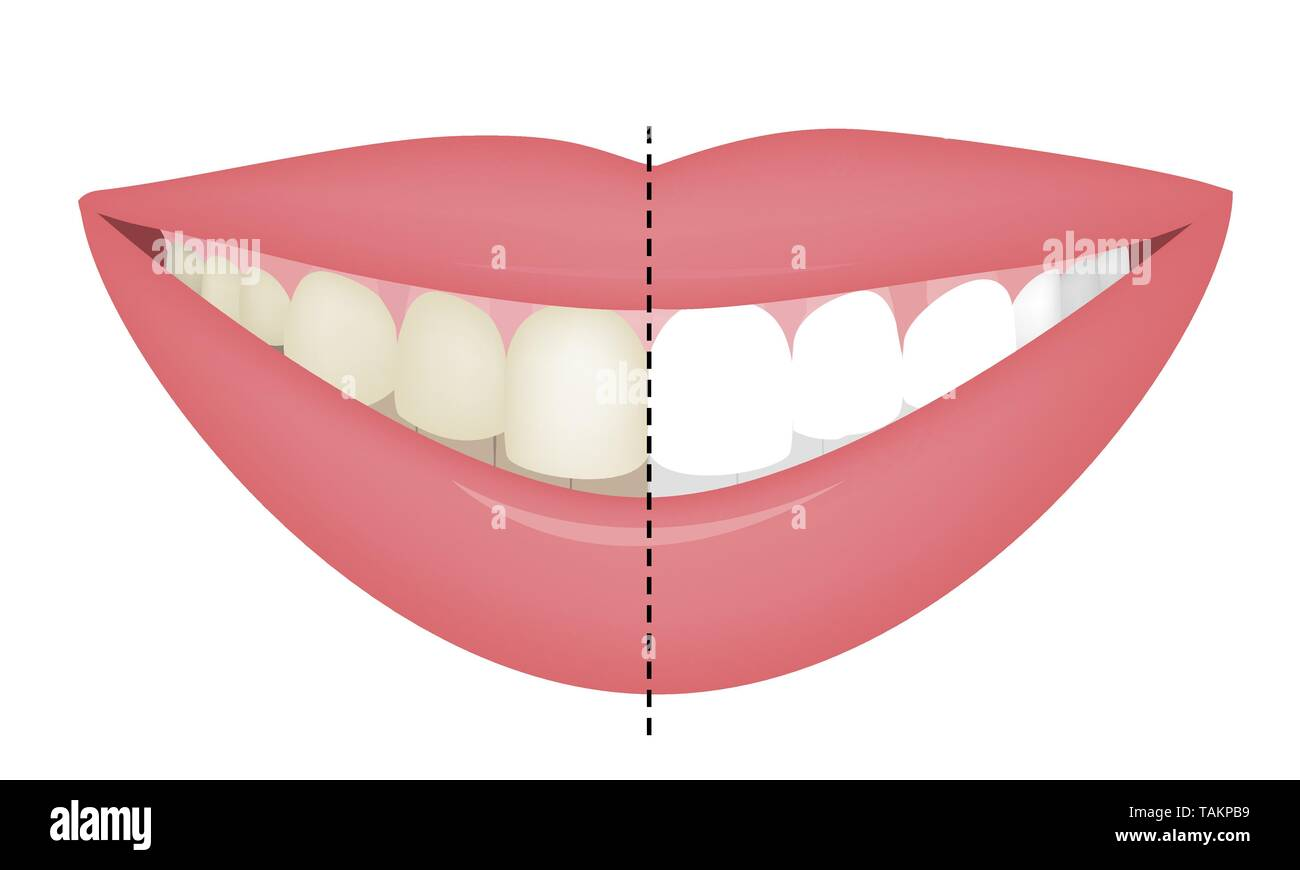 Teeth Whitening Before and After. Vector Illustartion - Stock Image