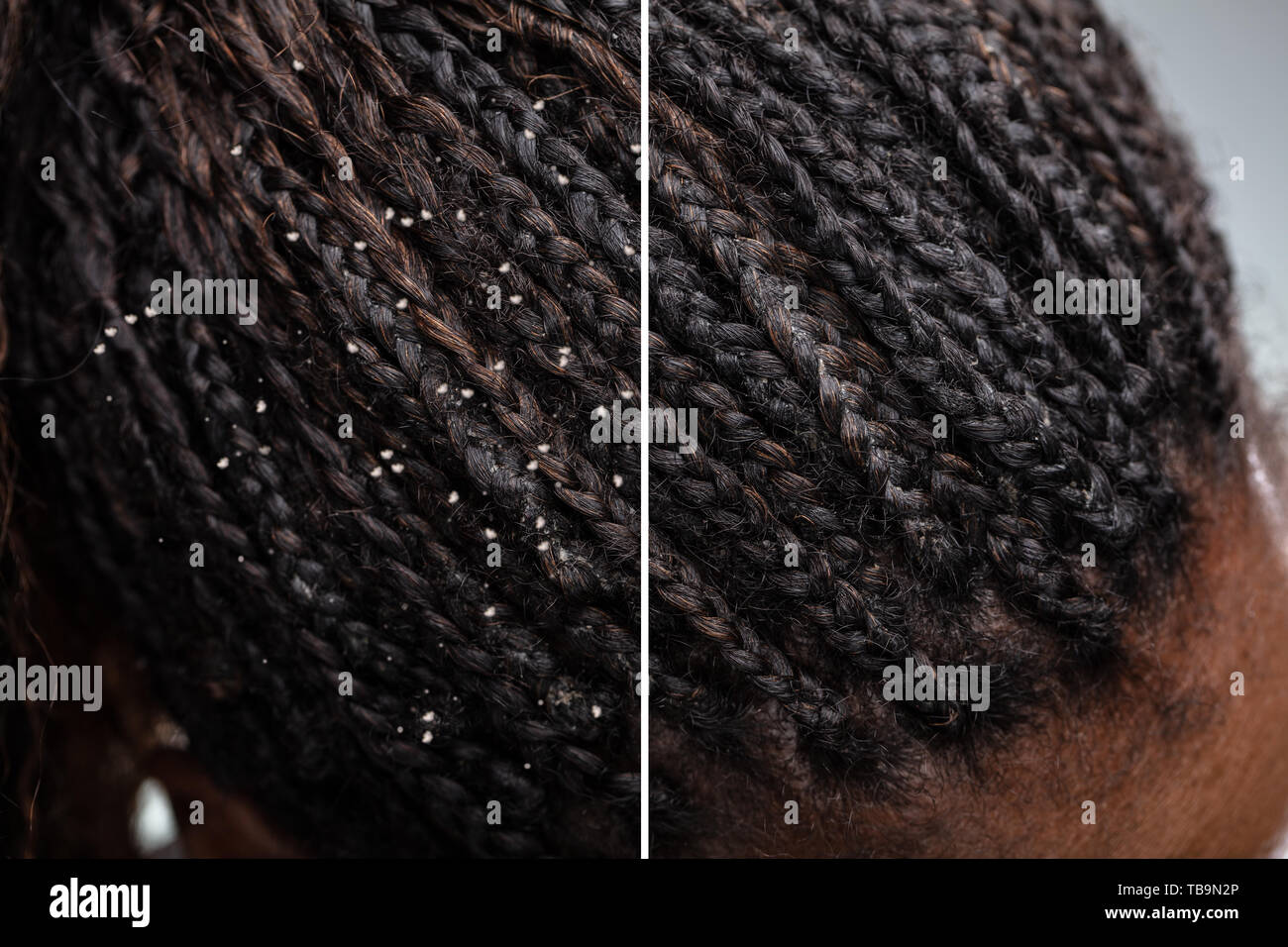 Difference Of Hair With Dandruff And Clean Hair Stock Photo